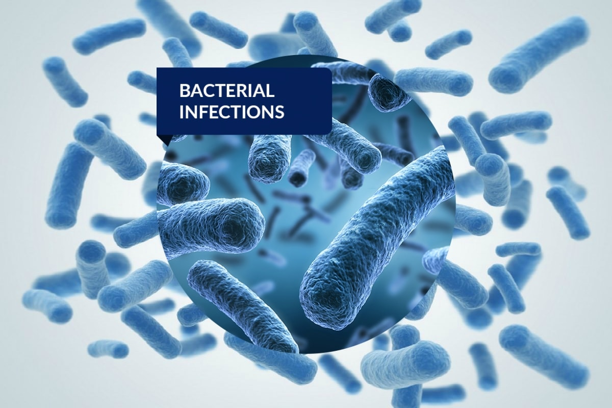Treat Bacterial Infection with Co-Amoxiclav